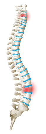 spine back pain diagram illustration